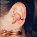 003-Healed-conch